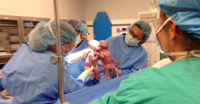 Cặp song sinh vừa chào đời đã nắm chặt tay nhau: Liệu ta có ước hẹn nào từ trước?