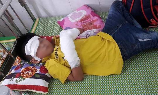 Điện thoại bất ngờ phát nổ, bé trai bị dập nát 2 bàn tay